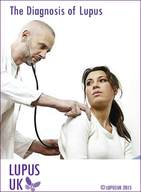 The diagnosis of Lupus